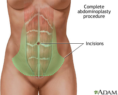 Full Tummy Tuck Incisions